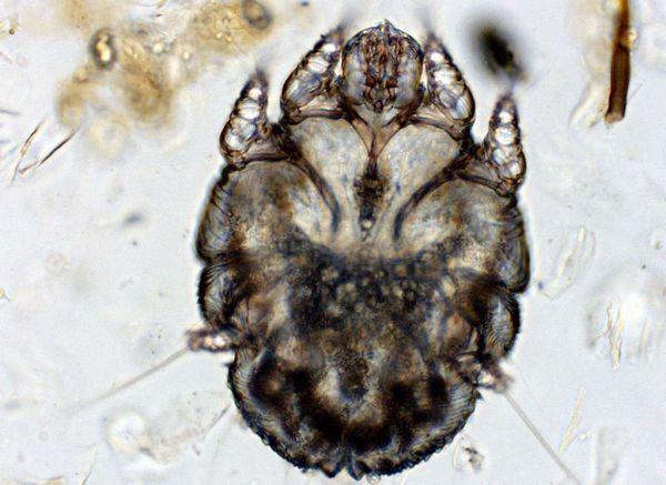 Коростяний кліщ (Sarcoptes scabiei)
