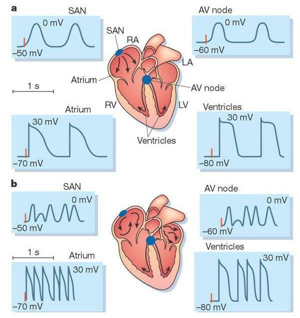 EKG u psa