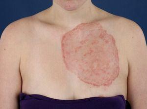 Дерматомикоза - особености на заболяването