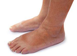 Дерматомикоза на стъпалото - външни признаци на заболяването