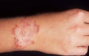 Проявата на дерматомикоза - обрив и други симптоми