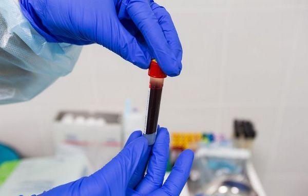 Куче за вземане на проби от кръв