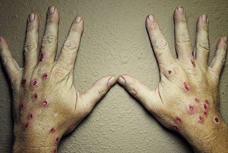 Ето колко страшно изглеждат ръцете на човек, страдащ от споротризоза.